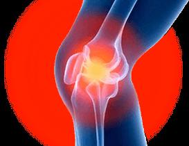 Artropant - controindicazioni - effetti collaterali
