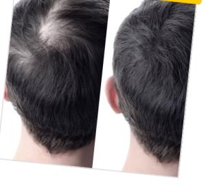 Foltina Plus - funziona - composizione - ingredienti - come si usa - per capelli