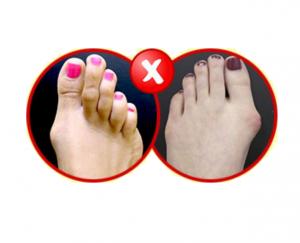Foot Fix Pro - originale - in farmacia - Italia