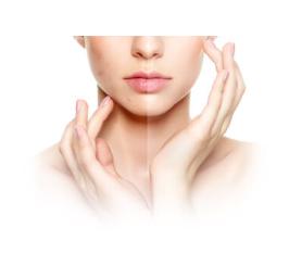 Clear Skin - funziona - composizione - come si usa - ingredienti