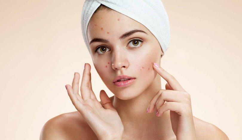 Skin Relax - funziona - come si usa