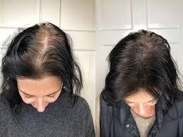 Hair Grow Max - dove si compra? - prezzo - farmacia - amazon