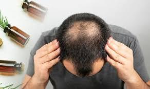 Hair Grow Max - controindicazioni - effetti collaterali