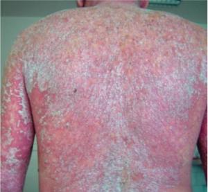 Sunsara Psoriasis - come si usa - funziona - composizione - ingredienti