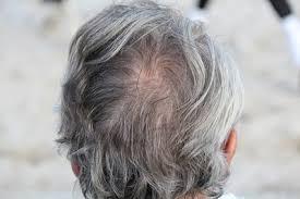 Anti-Grey Treatment - ingredienti - come si usa - funziona - composizione